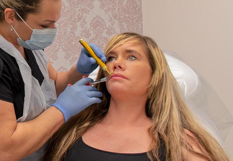 Dermal filler applied to lips