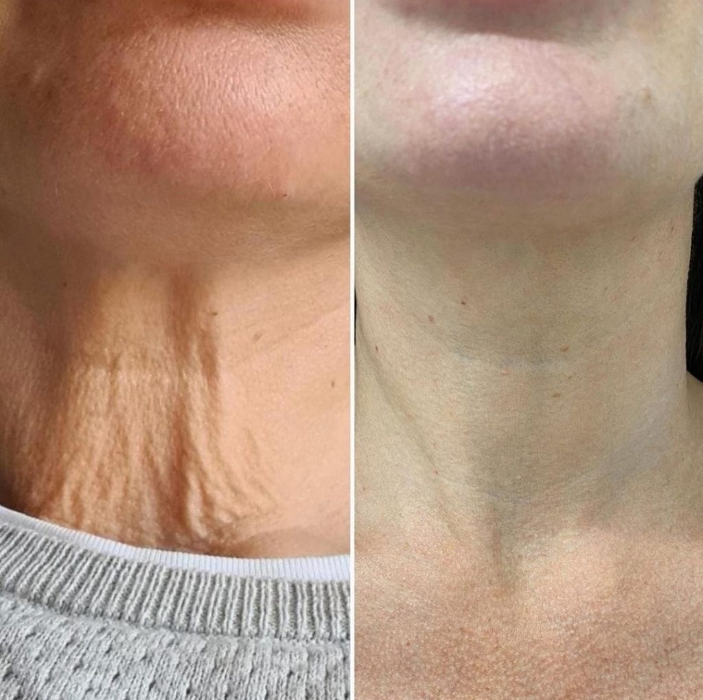Aesthetics treatment on neck